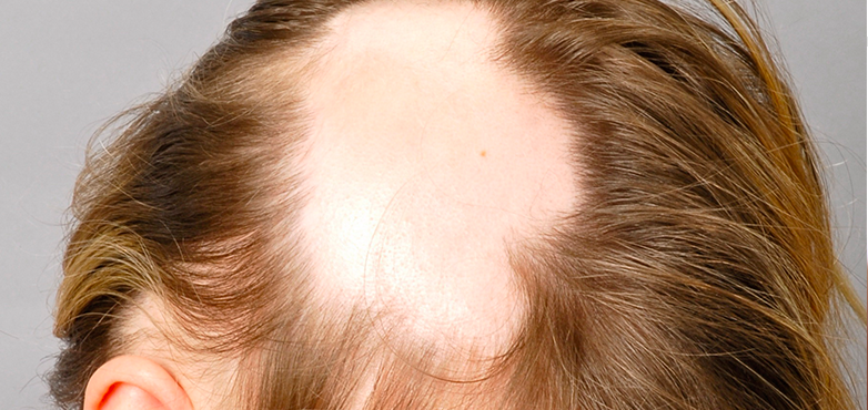 alopecia areata universalis